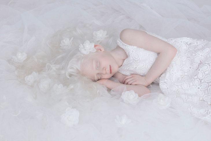 Queste foto mostrano l'accattivante bellezza delle persone con albinismo