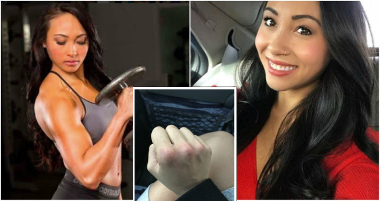 Le nocche gonfie della ragazza che ha preso a pugni l'uomo che ha tentato di stuprarla fanno il giro del web
