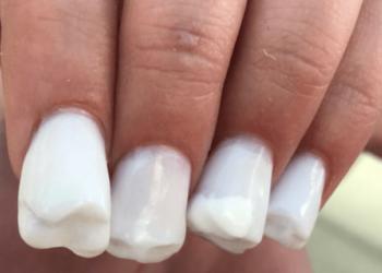 La nail art a forma di denti molari è a dir poco raccapricciante