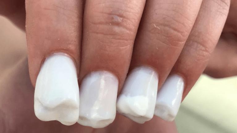 La nail art a forma di denti molari a dir poco raccapricciante - Cosa sono le finestre pop up ...